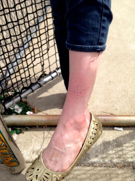 Baseball  bruise